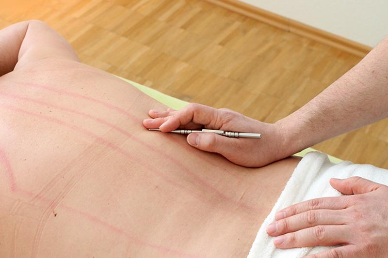 Akupunktmassage Behandlung auf einer Liege
